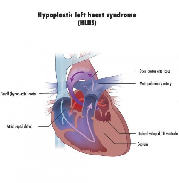 HLHS_Heart_CMS