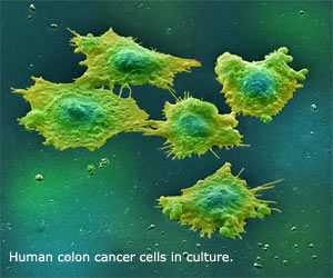 colon cancer stem cells