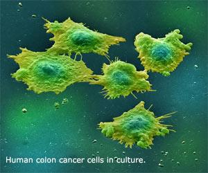 colon cancer stem cells
