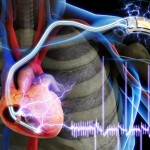 Piezoelectric Technology in a Pacemaker – Really?