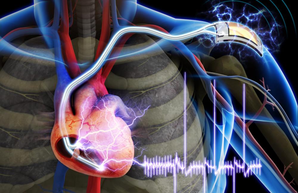 KAIST pacemaker