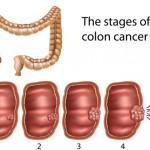 Colon_cancer