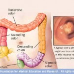 Colorectal Cancer Noninvasive Screening Test Developed at Mayo Clinic