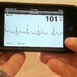 Gizmos & Gadgets: Smartphone App Diagnoses Atrial Fibrillation