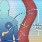 Detecting Cancer with Liquid Biopsies